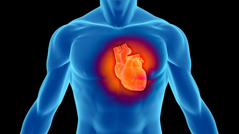 Cardiopatia da amianto
